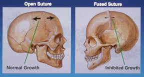 Craniectomy endoscopic strip